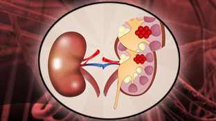 Kidney Cancer Causes: 11 Factors Putting You at Risk