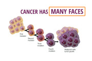 Cancer-has-many-faces