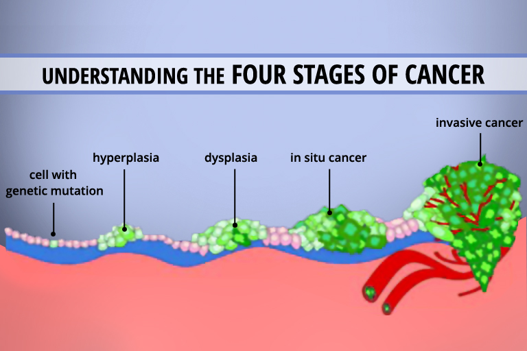 Stages-of-cancer