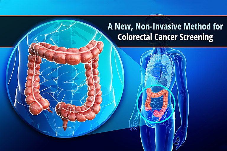 A New, Non-Invasive Method for Colorectal Cancer Screening | The ...