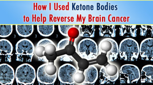 How I Used Ketone Bodies to Help Reverse My Brain Cancer