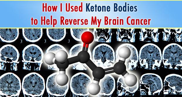 ketone_bodies_reverse_brain_Cancer2