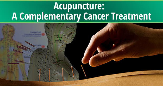 Acupuncture:  A Complementary Cancer Treatment