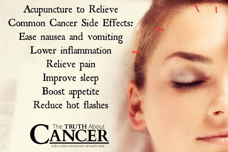 Acupuncture relieves common cancer side effects