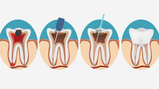 Are Root Canals Really a Cause of Cancer?