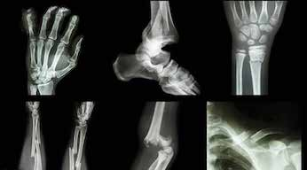 PEMF therapy for bone fractures