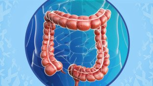 Colorectal Cancer Awareness Month: 5 Prevention Tips