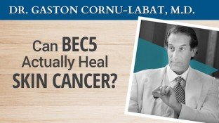 Can BEC5 Actually Heal Skin Cancer? (video)