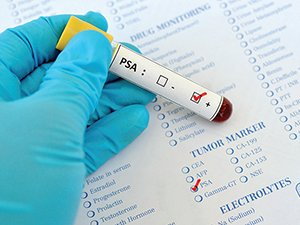 The PSA test is not a reliable indicator of prostate cancer as there are many factors that can elevate PSA levels