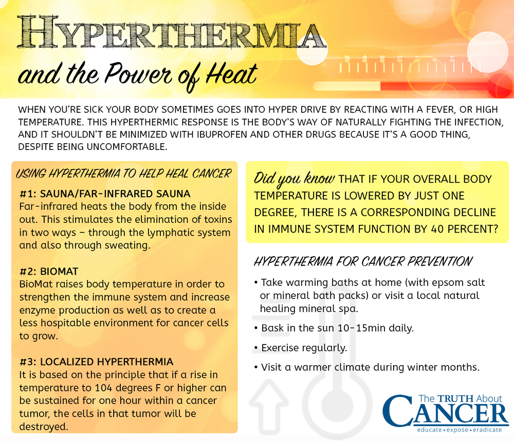 TTAC-book-hyperthermia-treatment-cancer