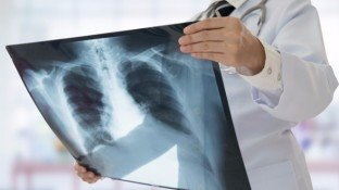 Lung Cancer: Causes and Promising Natural Solutions