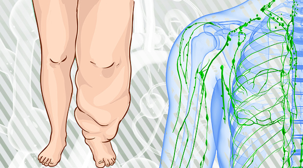 Get the Facts About Lymphedema Prevention and Causes