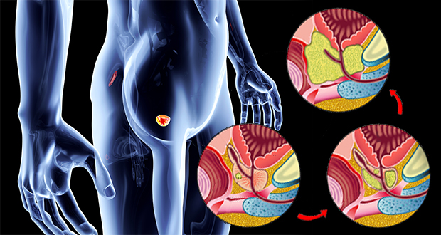 4 Early Warning Signs Of Prostate Cancer Understanding Prostate