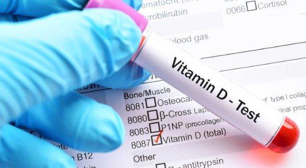 vitamin-d-blood levels